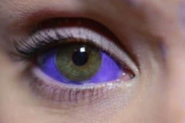 en los ojos 4